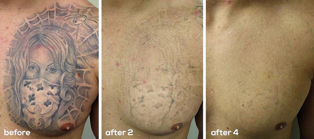 эффективный способ удаления татуировок
