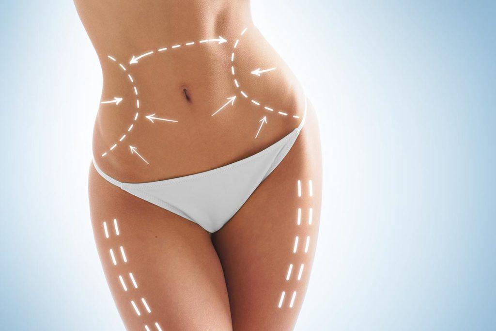 Когда и как делается липосакция для тела?